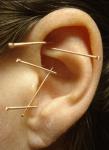 Akupunktur Ohrakupunktur